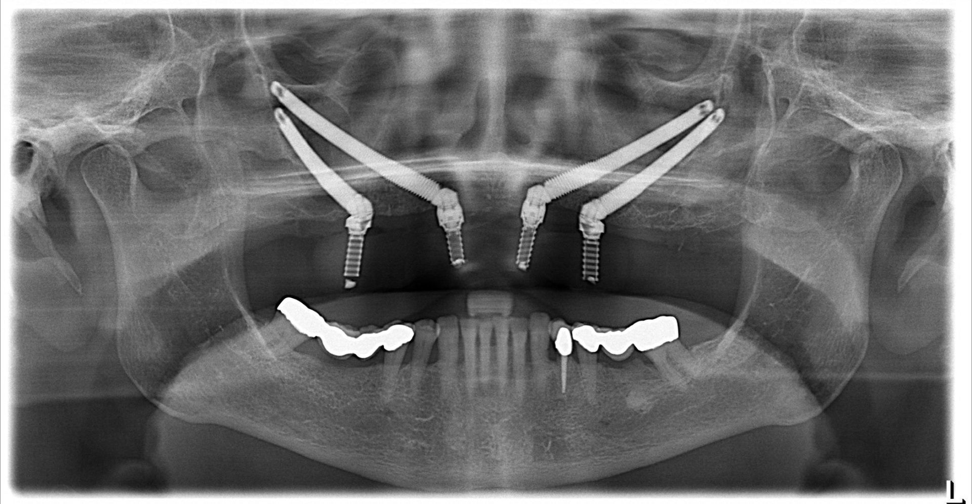 Zygomatic dental implants are beneficial for patients with severe bone loss
