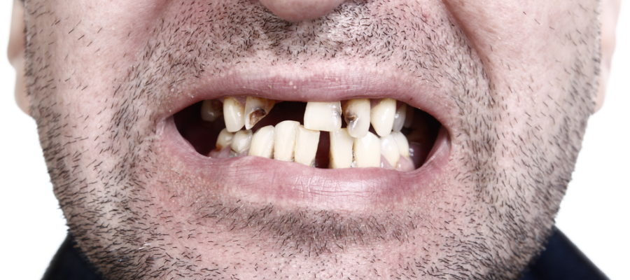 Poor Oral Care Leads to Teeth Implants