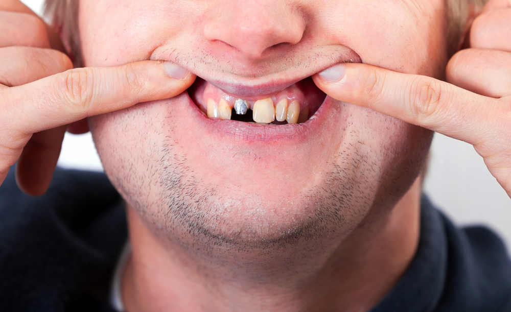 Dental Implants and Complications