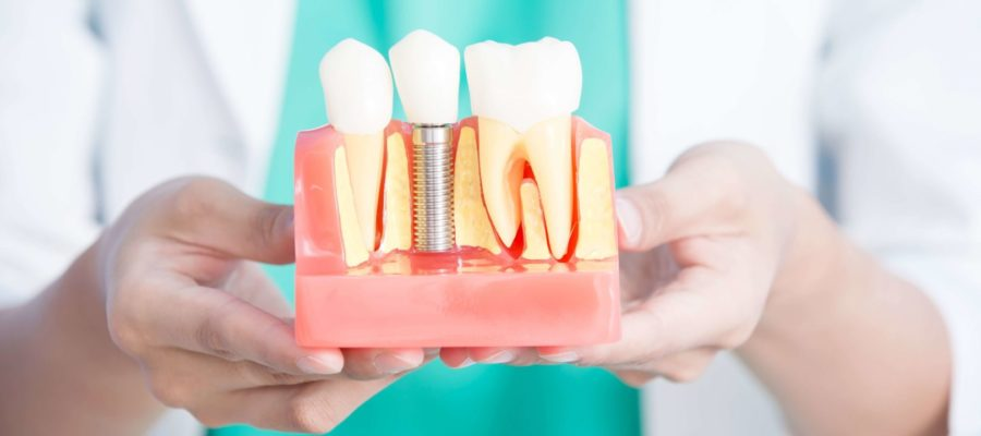 Are Dental Implants Permanent and How Long Do They Last