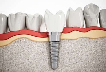 Dental Implants for One Tooth