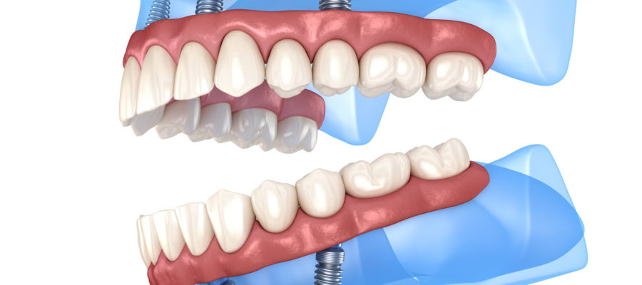 Maxillary and Mandibular prosthesis with gum All on 4 system supported by implants.